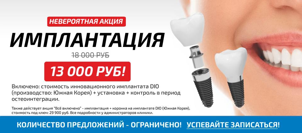 Консультация хирурга-имплантолога стоимость виды и цены в Екатеринбурге